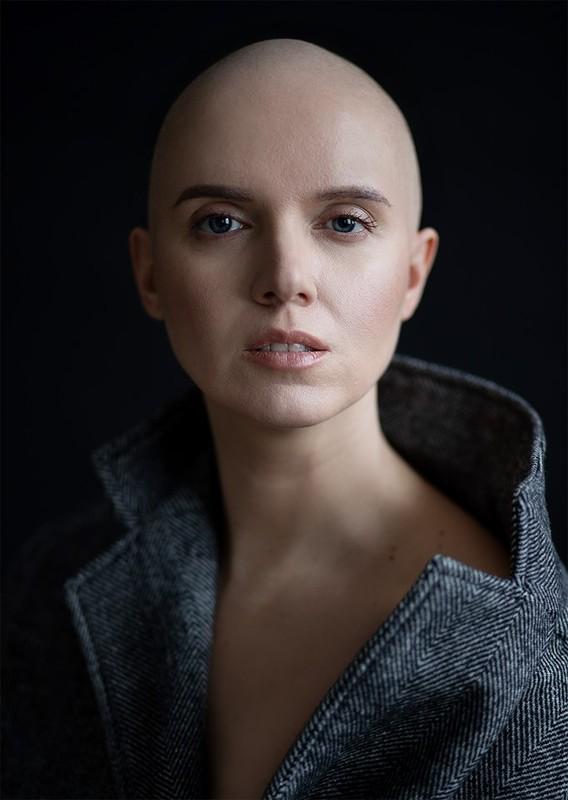 Кожен день, як останній, – Соколова відверто розповіла, як змінилася після хвороби